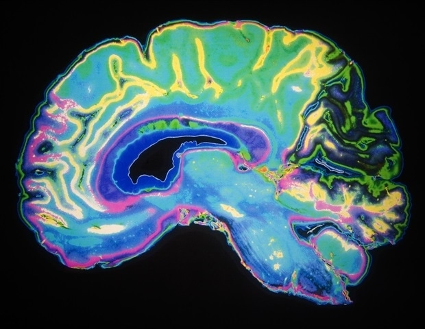 SARS-CoV-2 spike proteins can directly impact the blood-brain...